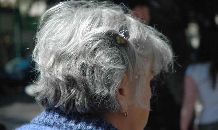 告别染发剂 蛋白质组分研究发现白发可逆转